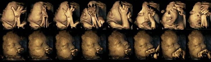 Ülemisel real on suitsetavate emade loodete reaktsioon, alumisel mitte suitsetavate.